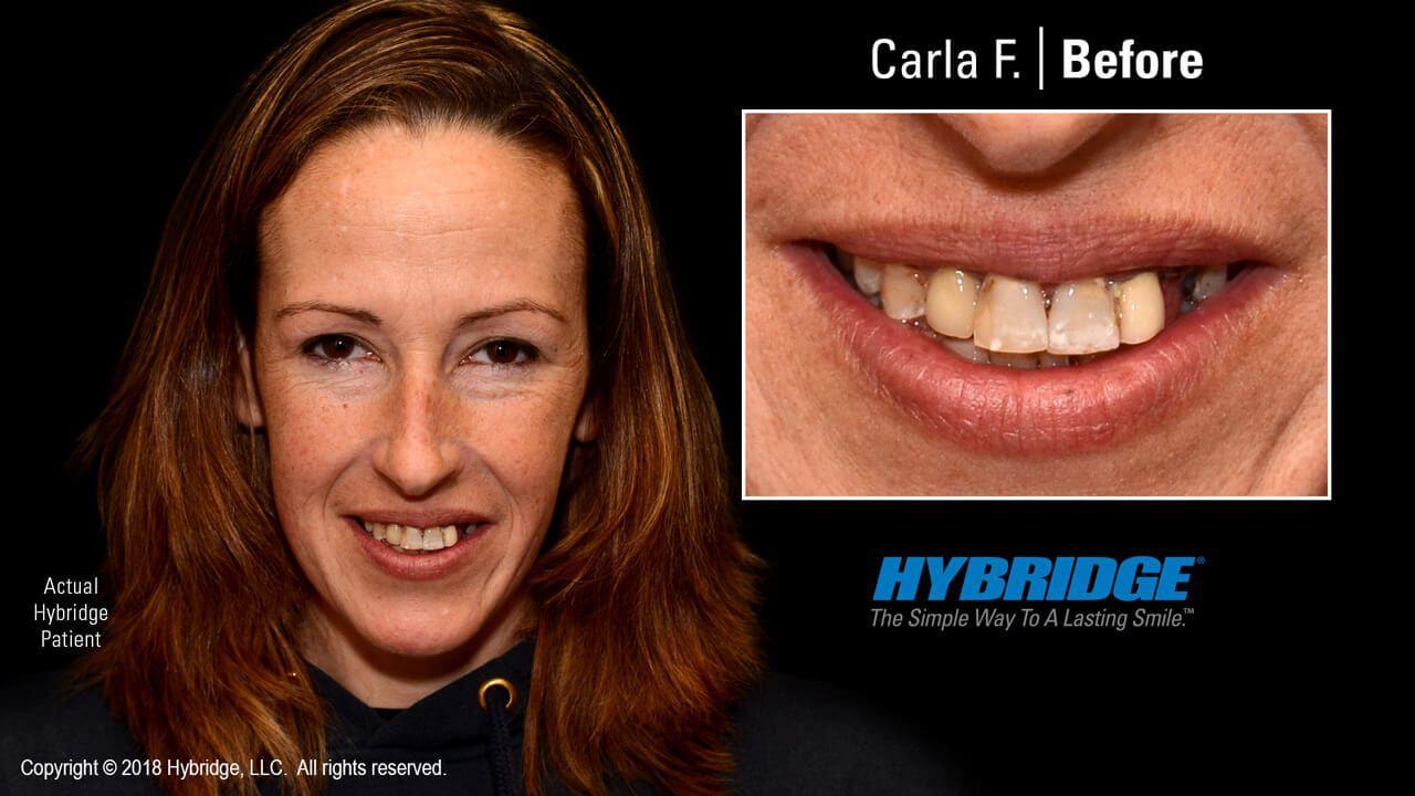 hybridge_carla_f_before