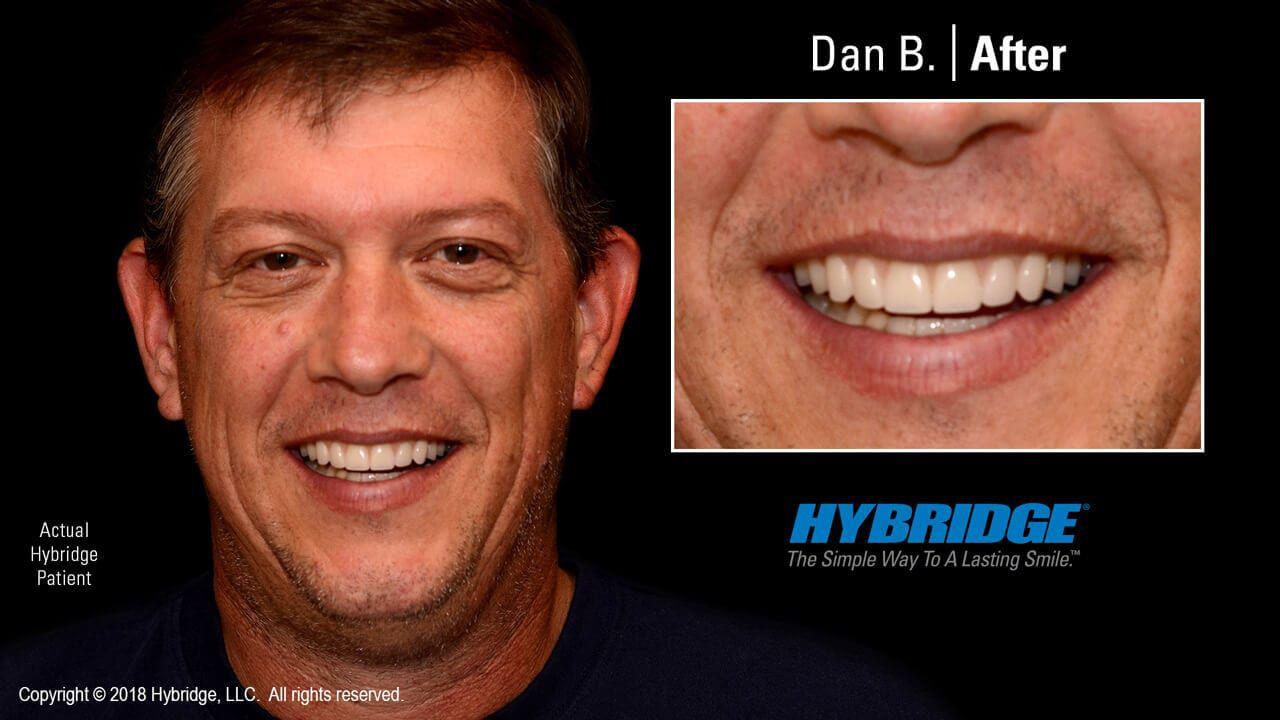 hybridge_dan_b_after