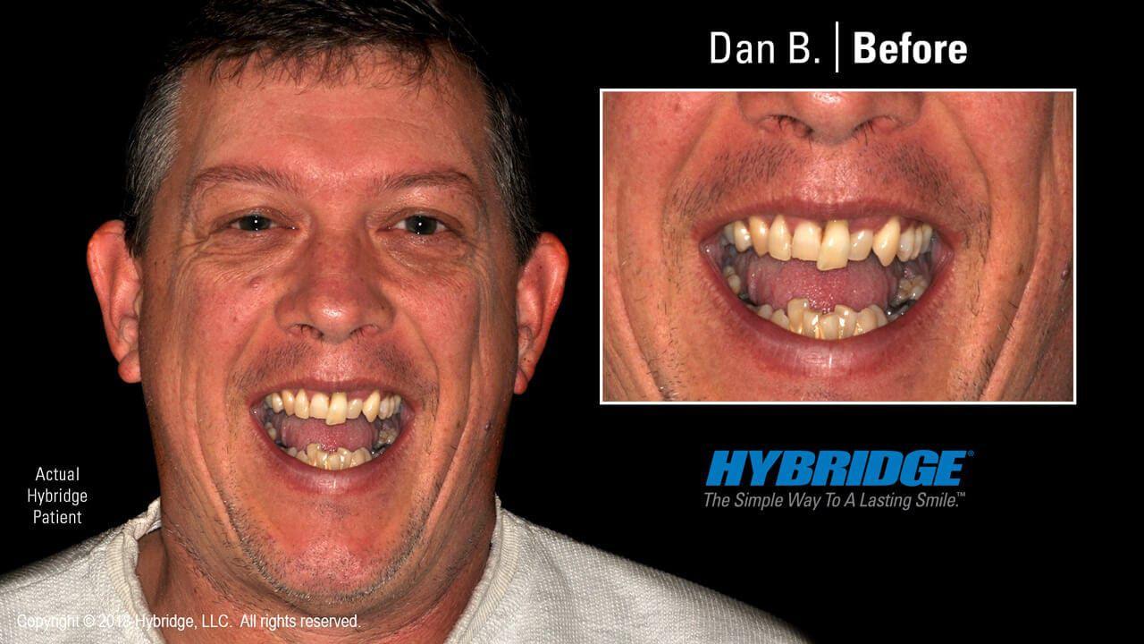 hybridge_dan_b_before