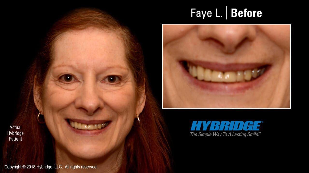 hybridge_faye_l_before